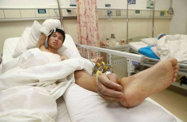 к чему снится травма ноги завода РТИ