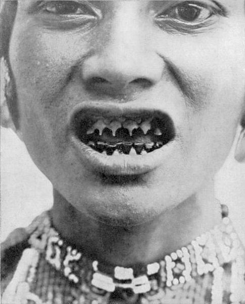 Заточка зубов – крайне болезненная процедура. Традиция точить зубы существовала в племенах Южной Азии. Сточенные зубы считались высшей формой красоты среди женщин на восточных островах Филиппин.