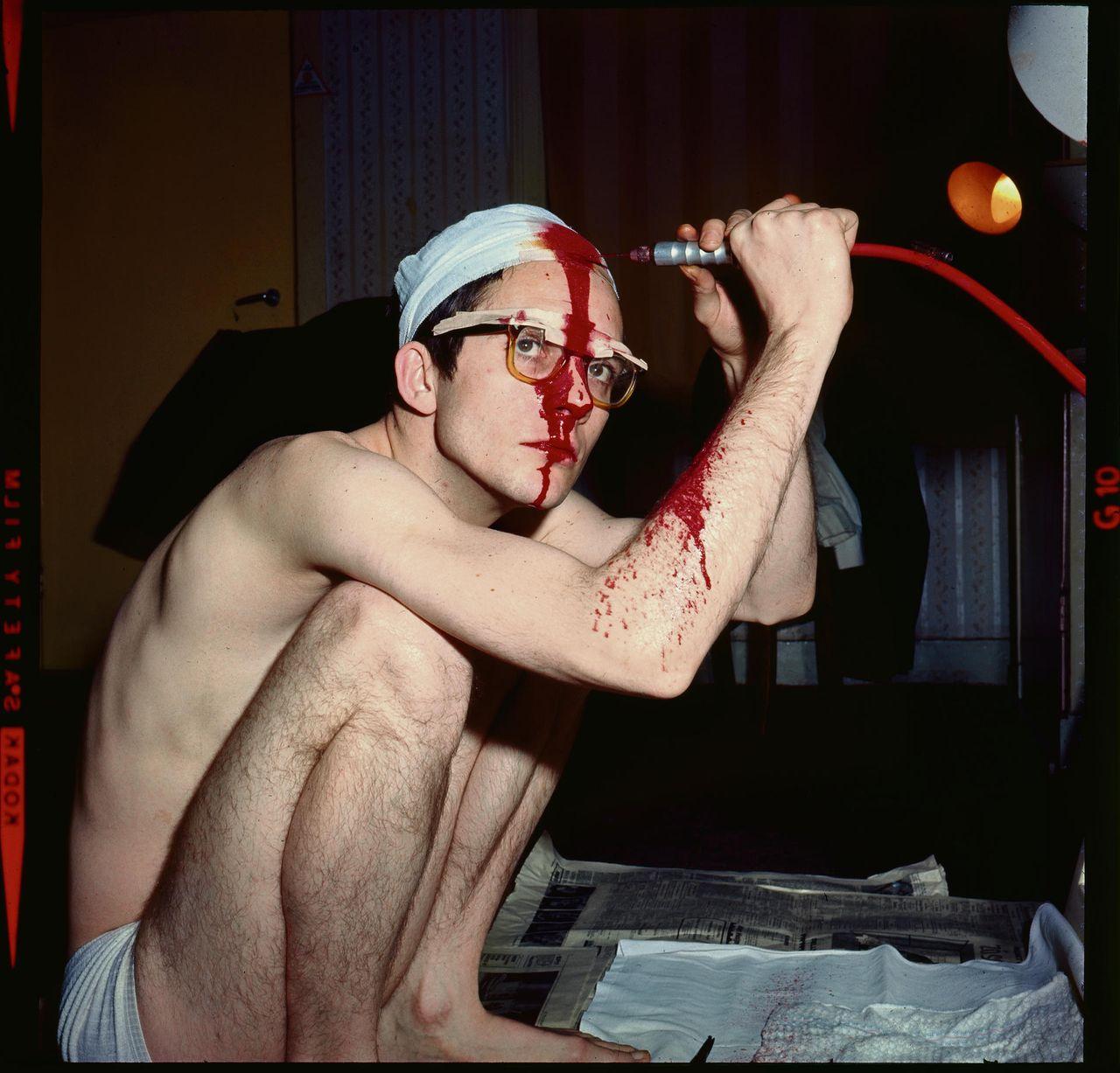 Барт Хьюз во время операции. Трепанация черепа самостоятельно