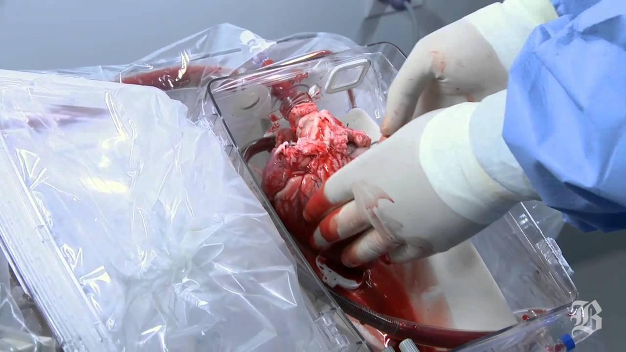 Новости медицины. Операции на сердце