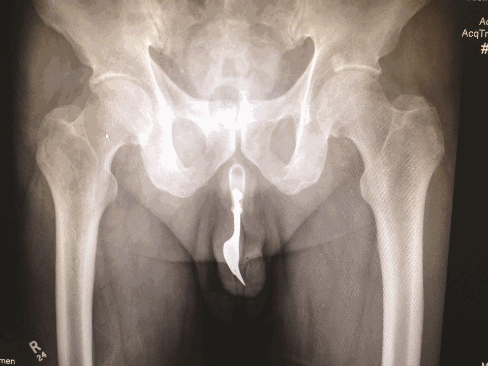 Что достают из пациентов врачи-эндоскописты